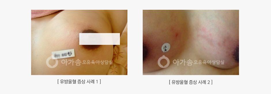 유방 울혈 증상 사례 2가지 대표 사진