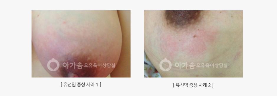 유선염 증상 대표 사례 사진